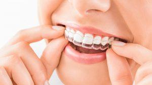 4 วิธีการจัดฟันแบบต่างๆ - จัดฟันแบบเหล็ก เซรามิก 3M และแบบใส