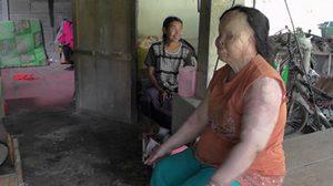 วอนช่วย สาวชุมพรถูกสาดน้ำกรดตาบอด 2 ข้าง มีเพียงเบี้ยคนพิการเลี้ยงชีพ