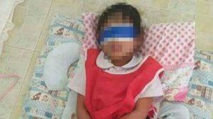 แชร์ว่อนภาพนักเรียนอนุบาล ถูกทำโทษด้วยการมัดมือ-ปิดตา