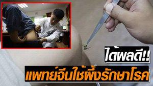 แก้พิษด้วยพิษ! แพทย์แดนมังกรใช้ 'เหล็กในผึ้ง' รักษาผู้ป่วย
