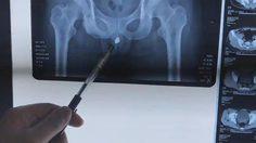 เกือบโดนเฉือนทิ้ง!! หนุ่ม ซาดิสม์ ยัดกุญแจเข้าไปในรูฉี่ จนต้องผ่าตัดออกด่วน