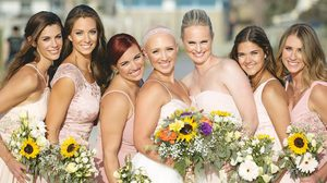 Kylie Bamberger เจ้าสาวหัวล้าน สุดสตรอง ขอสวยแบบไม่ใส่วิก ในวันแต่งงาน