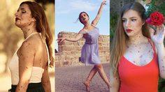 เกิดมามีสองแขนสองขา ก็โชคดีที่สุดแล้ว! สาวสเปนมีไฝทั่วตัว ทำตามฝันเป็นนักบัลเล่ต์