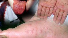 เตือน! ระวังเด็กติดโรคมือเท้าปาก พบปีนี้ป่วยกว่า 25,000 คน