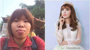 สาวเวียดนาม ทุ่ม 7 แสน ยกเครื่องทำ ศัลยกรรม เปลี่ยนลูกเป็ดขี้เหร่เป็นนางฟ้า แถมได้สามี!