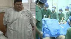 หนุ่มอ้วนอยากเป็นเทรนเนอร์ ตัดสินใจผ่าตัดลดขนาดกระเพาะลดความอ้วน