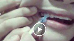 เพจดังซัด ! สาวสอนจัดฟันเองแบบง่าย ๆ 200 บาท