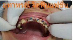 อุทาหรณ์! สาวจัดฟันแฟชั่น ฟันพัง ถอนเกือบทั้งปาก