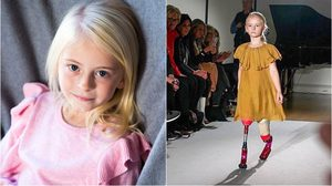 พิการอย่าได้แคร์! สาวน้อย 7 ขวบไร้ขา เป็นนางแบบเสื้อผ้าเด็กแบรนด์ดัง