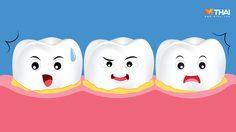 ตอบปัญหาเรื่องฟัน! คราบหินปูนคืออะไร ทำไมต้อง ขูดหินปูน?