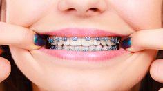 หลังจัดฟันต้องใส่ รีเทนเนอร์ ไว้นานแค่ไหน