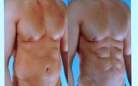 สร้างกล้ามซิกแพ็ครวดเร็วมาแบบแน่นๆ ไม่ง้อ ฟิตเนส ด้วยการ ดูดไขมัน