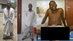 หนุ่มอัณฑะใหญ่ ที่สุดของโลก เข้าผ่าตัดเพื่อกลับมาใช้ชีวิตประจำวันเหมือนคนอื่น