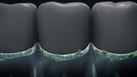 ร่องเหงือกสะอาด ฟันแข็งแรง ต้องทำอย่างไร?