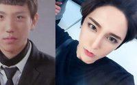 ก่อนและหลัง ศัลยกรรม เปลี่ยนลุค Han Jin Ho เน็ตไอดอล หน้าเป๊ะ