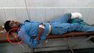 ชิวไปอีก!! หนุ่ม อินเดีย ใช้ขาของตัวเองที่ขาดมาหนุนแทนหมอน ขณะรอแพทย์มารักษา