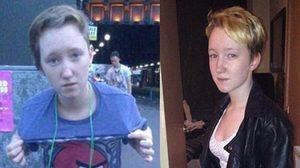 Rebekka Howie เด็กที่มีสองเพศในร่างเดียว