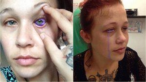 สาวพลาด สักตา ติดเชื้อรุนแรง น้ำตาเป็นสีม่วง เสี่ยงมองไม่ชัดตลอดชีวิต!!!