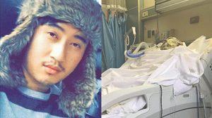 สุดเศร้า ! หนุ่มไทยผู้นำเยาวชนที่สหรัฐฯ ถูกสาดน้ำกรดสาหัส-ตาบอด