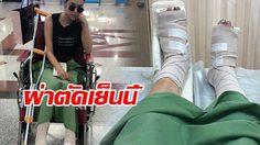 หยาด แคนเซิ่ลงานกะทันหัน เกิดอุบัติเหตุกระดูกหัก!