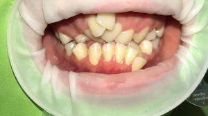 อยากจัดต้องให้ถูกวิธี! เผยภาพฟันคนไข้ หลังไปจัดฟันแฟชั่นแค่ 7 เดือน