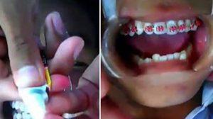 หมอฟันเตือน! จัดฟันแฟชั่น ใช้กาวตราช้างติดลวด เสี่ยงอันตราย