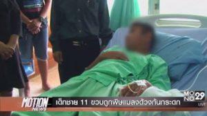 เด็กชาย 11 ขวบถูกพิษแมลงก้นกระดกที่ อวัยวะเพศ จนฉี่ไม่ออก