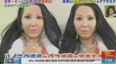 แปลกแต่จริง! คู่แฝด ที่เหมือนกันที่สุดในโลก แชร์ แฟนหนุ่มคนเดียวกัน เตียงเดียวกัน