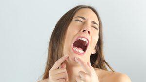 สิวเสี้ยนที่คางกวนใจคุณป่ะ? 9 วิธีกำจัด สิวเสี้ยนที่คาง ให้สิ้นซาก