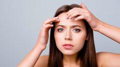 5 พฤติกรรม ที่ทำให้สิวขึ้นบริเวณคิ้ว เลิกทำก่อนเป็นสิวเรื้อรัง - วิธีดูแลผิวหน้า