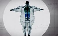 โรคอ้วน ภาพ X-ray ร่างกาย น่ากล้วมาก อ้วนจนลุกยืนไม่ขึ้น