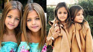กินอะไรเข้าไปลูกกก! Ava – Leah สาวน้อยฝาแฝดสวยที่สุดในโลก