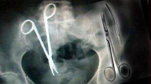 จวกยับ หมอลืมกรรไกรไว้ในท้องคนไข้ ทนปวดท้องนาน 18 ปี