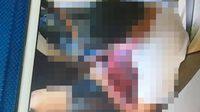 ตำรวจนครพนม วัย 41 ปี เครียดจัด ยิงตัวตาย ดับสยองคารถเก๋ง