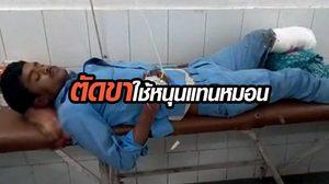 ช็อก !! หมอตัดขาคนไข้ ใช้ขาที่ถูกตัดหนุนหัวแทนหมอน