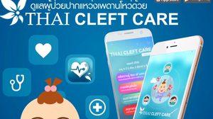""""""" Thai Cleft Care """" แอปฯเพื่อผู้ป่วยปากแหว่งเพดานโหว่"""