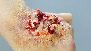 วิธีทำ แผลปลอม หนอนชอนไช ด้วย scar wax ประหยัดและง่ายสุดๆ
