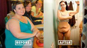 สาวพลาดอย่างแรง! ผ่าตัดกระเพาะอาหาร หวังลดน้ำหนัก แต่กลับได้พุงย้วยๆ มาแทน