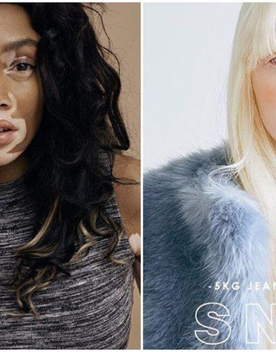 7 สาว 'สีผิว' แปลกไม่เหมือนใคร จากปมด้อย ตอนนี้กลายเป็น คนดังระดับโลก!