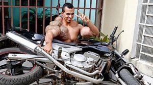 หนุ่มบราซิลเกือบเสียแขน หลังฉีดสารซิลทอลเพื่อเป็น The Hulk!!