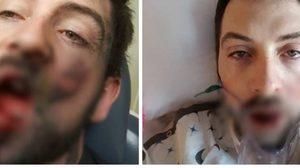 หนุ่มมะกันเตือนภัยบุหรี่ไฟฟ้า หลังมันระเบิดคาปาก จนฟันหักเป็นแผลฉกรรจ์
