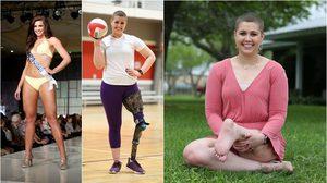 ยิ้มสู้! สาวงามเวทีขาอ่อน ป่วย โรคมะเร็ง ชีวิตพลิกต้องใช้ชีวิตกับขาที่กลับด้าน 180 องศา