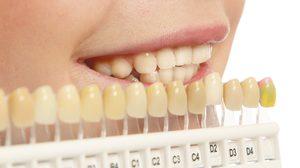 7 เคล็ดลับ ฟันขาวอย่างเป็นธรรมชาติ