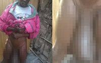 หนุ่มจากเคนย่า กระปู๋ขนาดมหึมา ใหญ่กว่าคนปกติ 10 เท่า