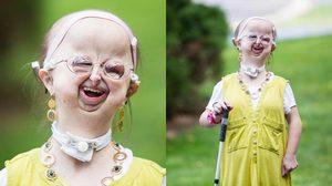 หญิงสาววัย 20 ป่วยเป็นโรคหายาก 1 ใน 5 ล้านคน แต่เธอยังยิ้มได้เสมอ และฝันอยากเป็นหมอ